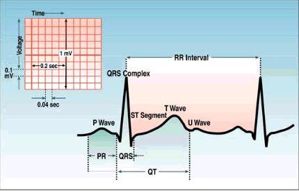 EKG pqrst