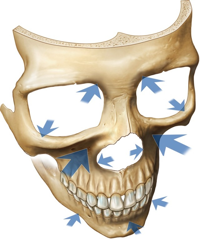 Facial depressions with aging-front