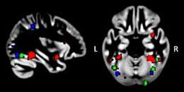 autistic-brain-260x130