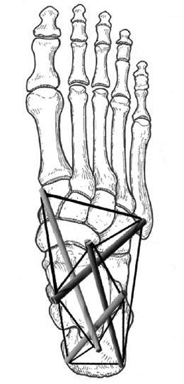 FOOT TENSEGRITY fig_21_Tens_Foot_Const