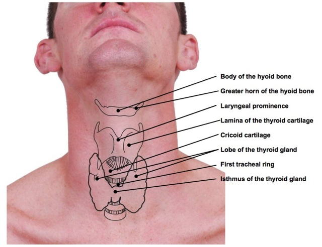 Hyoid from Dr Dooley