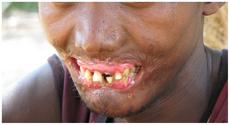 Noma disease